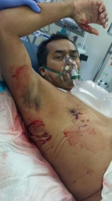 Steve Robles shows his wounds while in the emergency room at Harbor-UCLA Medical Center. Courtesy of Steve Robles